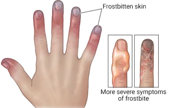 Frostbite Hand - cold weather safety