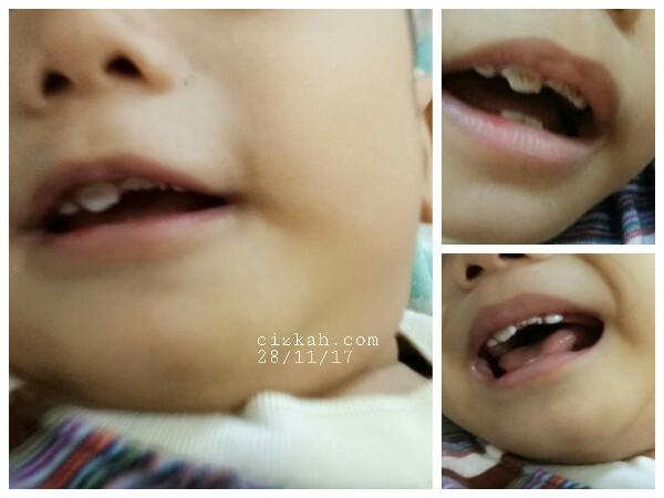 gigi-bayi-rompal-gigi-cizkah