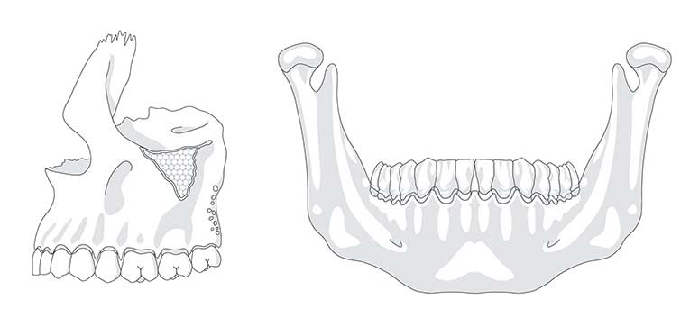 » Zahnmedizinische Illustrationen»Comic Jansen