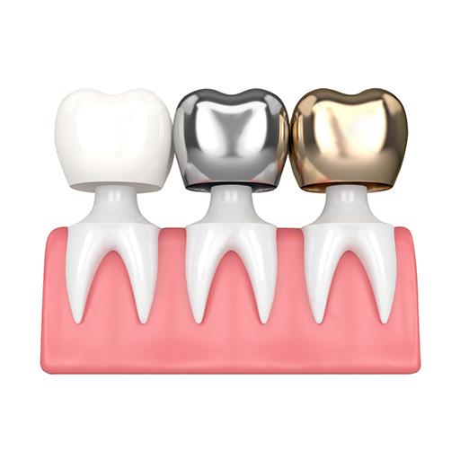 牙冠及牙橋 – 思傑牙科醫療集團 CJ Dental Care