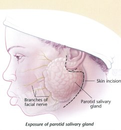 what is this for and is it effective the parotid gland  [ 1500 x 1344 Pixel ]