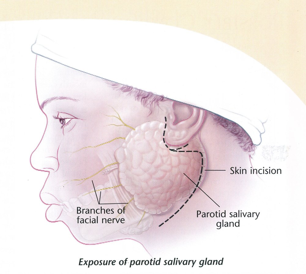 medium resolution of what is this for and is it effective the parotid gland