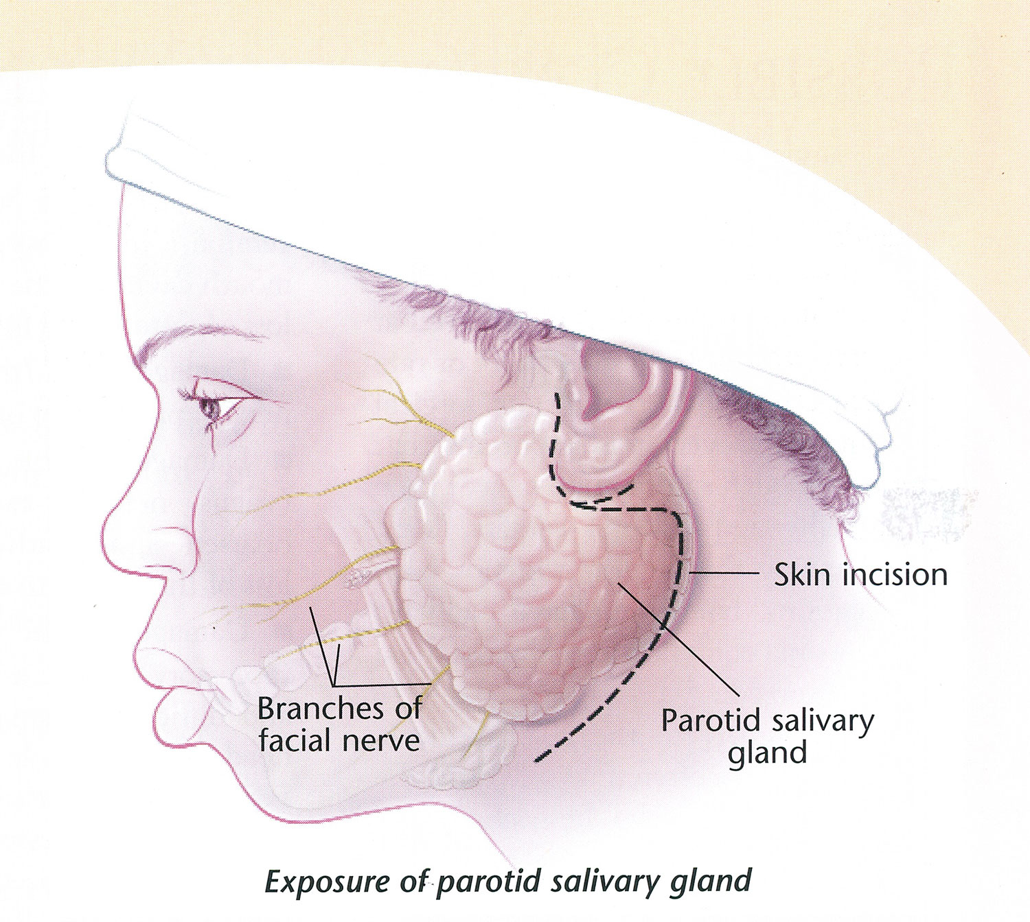 hight resolution of what is this for and is it effective the parotid gland