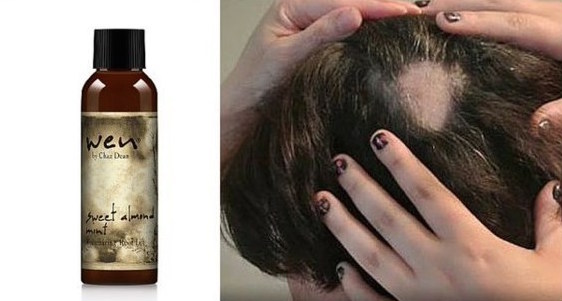 FDA issues safety alert for Wen hair products after reports of hair loss