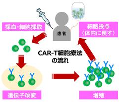 CAR-T細胞療法の流れ