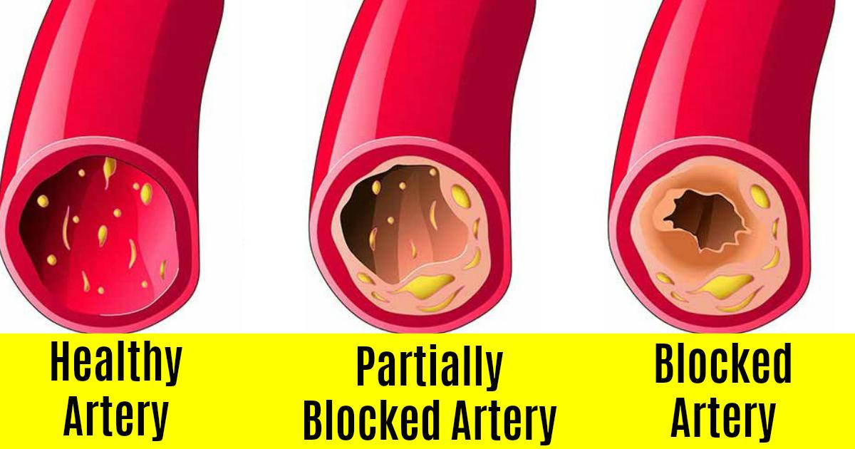 Blocked Arteries   Clean Arteries