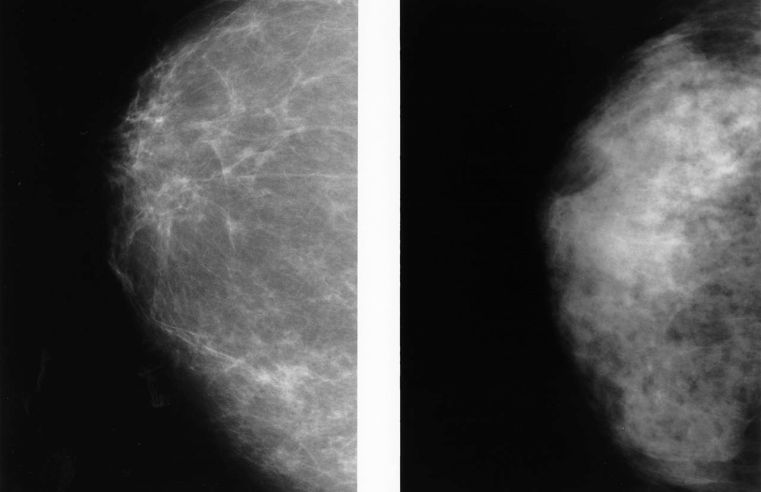 Dense breasts on a mammogram? What to know and do