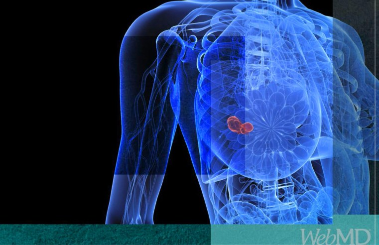 Drug Shows Promise Vs. Aggressive Breast Cancer