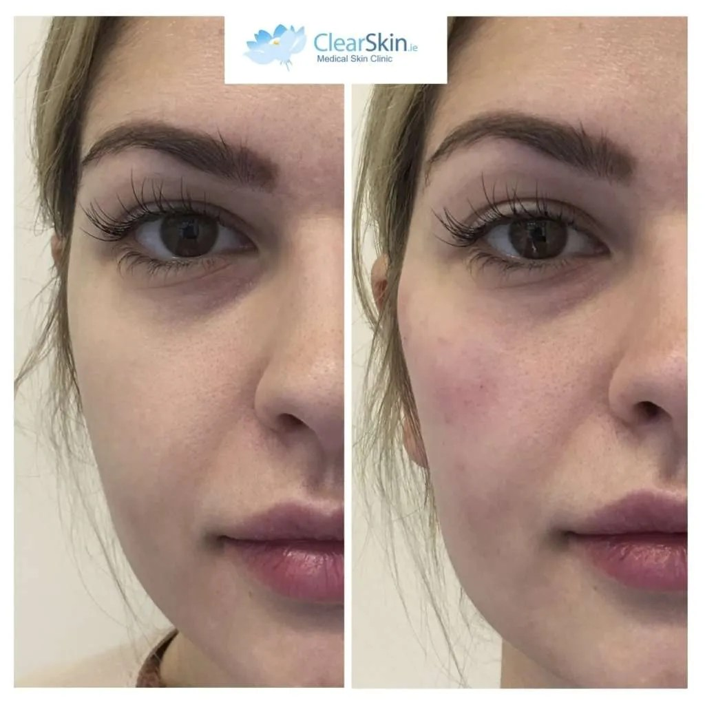 Facial Fillers - ClearSkin