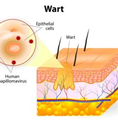 diagram illustrating layers of the skin and which area a wart occupies [ 1000 x 789 Pixel ]