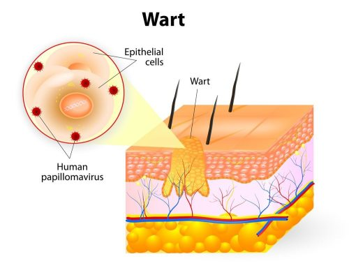 small resolution of diagram illustrating layers of the skin and which area a wart occupies