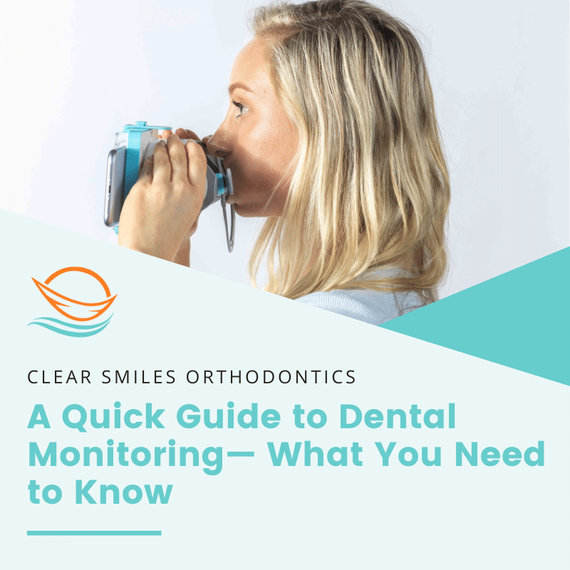 A Quick Guide to Dental Monitoring— What You Need to Know