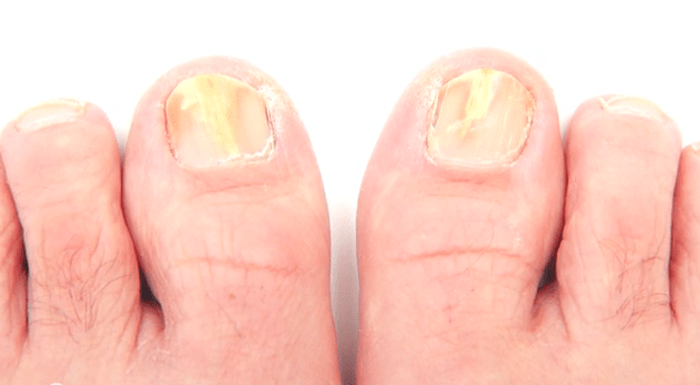 How To Detect The Early Signs Of Toenail Fungus  Clear