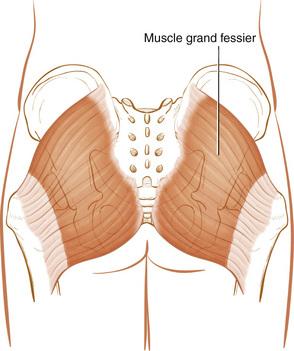 muscle du grand fessier
