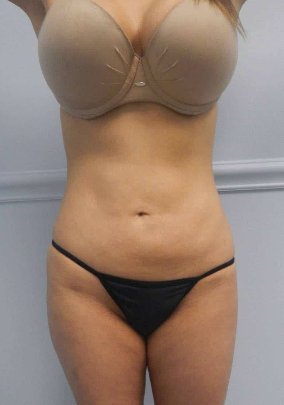 VASER LIPOSCULPTURE | BODY SCULPTING
