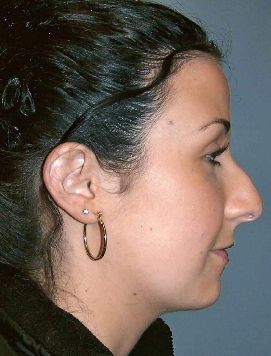 Rhinoplasty | Cosmetic Nose Surgery