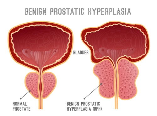 comparison of normal prostate VS one with BPH