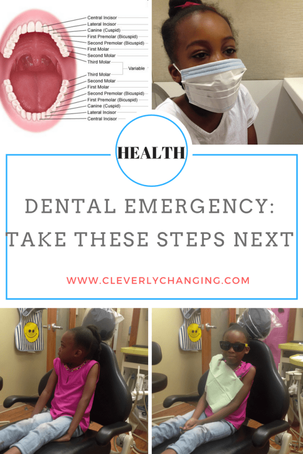 Dental emergency steps