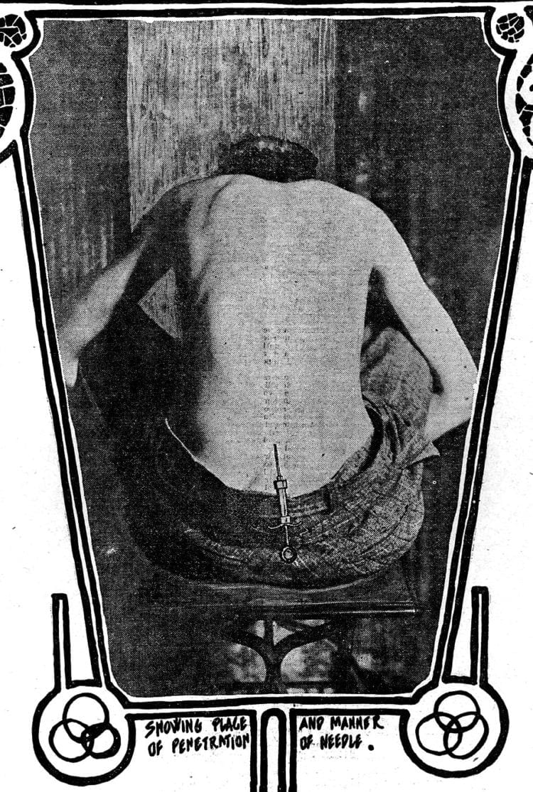 The new spinal anesthesia Put cocaine in the spine (1902)