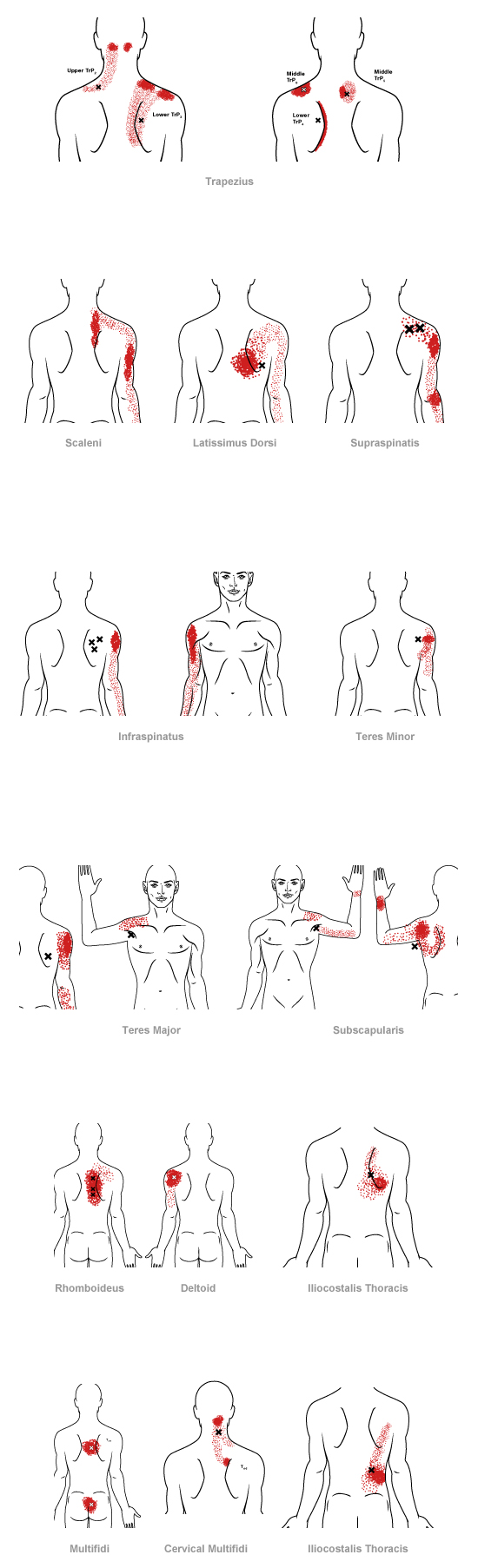 Myofascial Pain Syndrome muscle pain