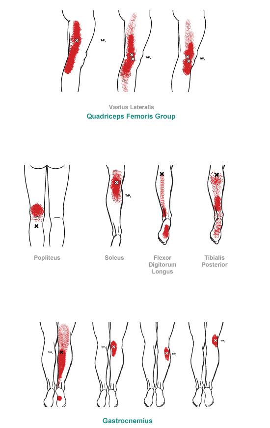 Lower Leg  Myofascial Pain Syndrome muscle pain