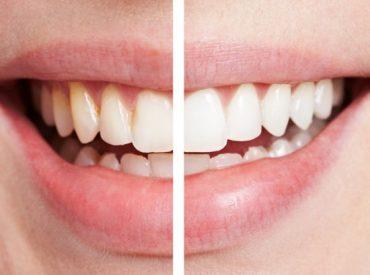 20161109105346_dentistica