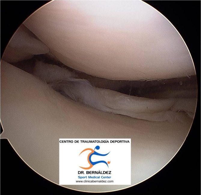 MENISCO DR BERNALDEZ www.clinicabernaldez.com