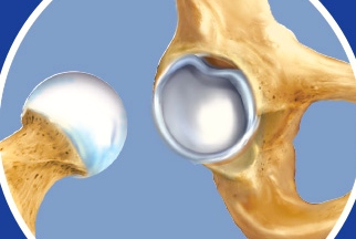 Rotura Labrum Cadera. Artroscopia de Cadera