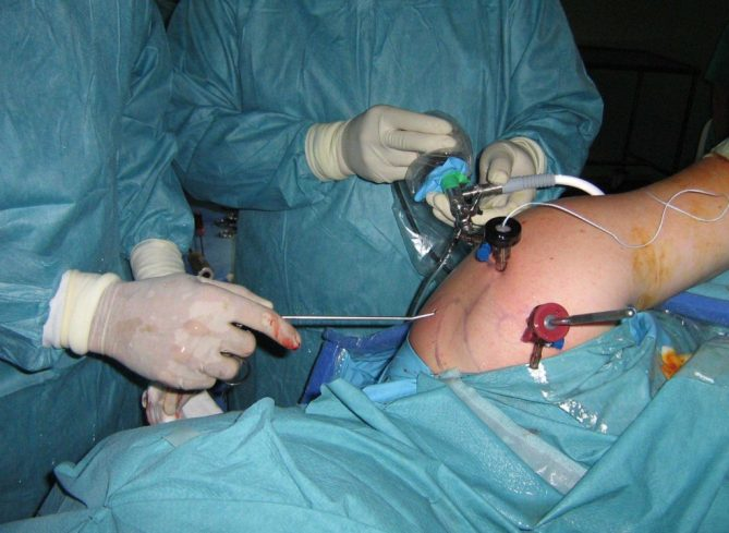 OPERACION ARTROSCOPIA HOMBRO LESION SLAP www.clinicabernaldez.com