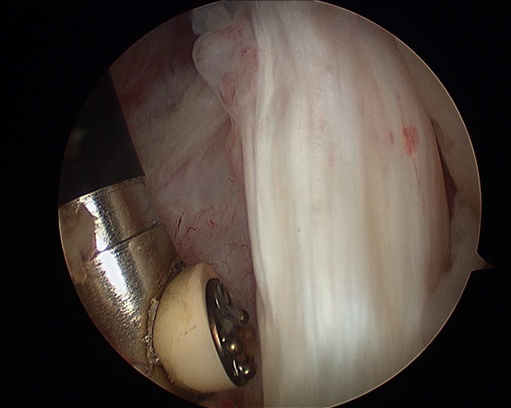 Lesión del Subescapular hombro.Limitación en la movilidad y dolor