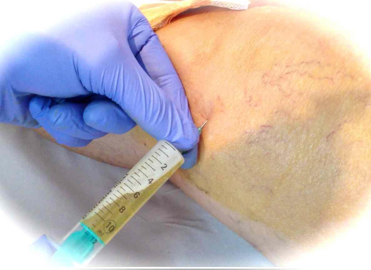 Resultado del Plasma Rico en Plaquetas en Artrosis de Rodilla