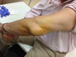 BURSITIS CODO - DR BERNALDEZ www.clinicabernaldez.com