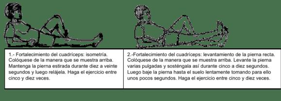 Ejercicios para condromalacia rotuliana www.clinicabernaldez.com