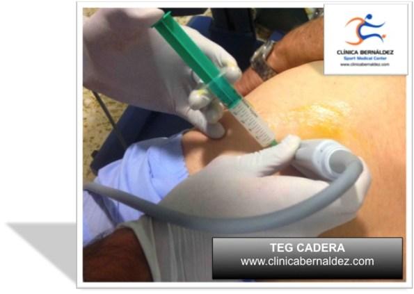 LA TERAPIA ECOGUIADA TEG. Tratamiento de Tendones, Musculos y Ligamentos