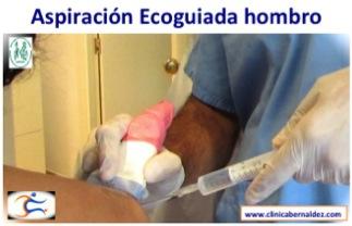 Tendinitis Calcificante hombro. Curacion sin cirugia