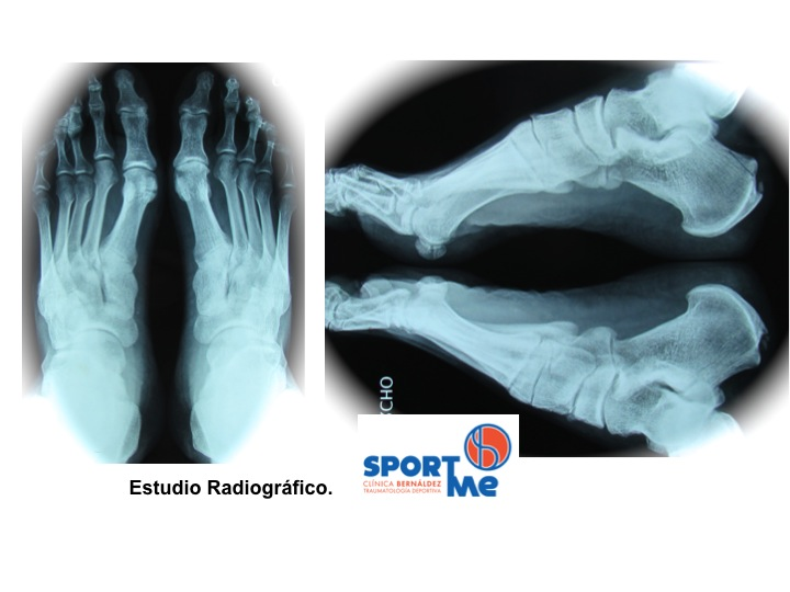 Radiografías que confirman una Enfermedad Hadlung