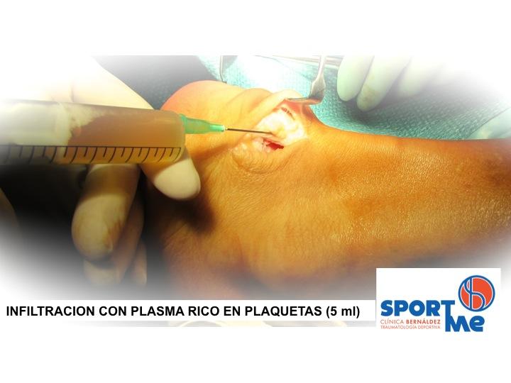 Enfermedad Hadlung Infiltrar PRP Sportme Sevilla