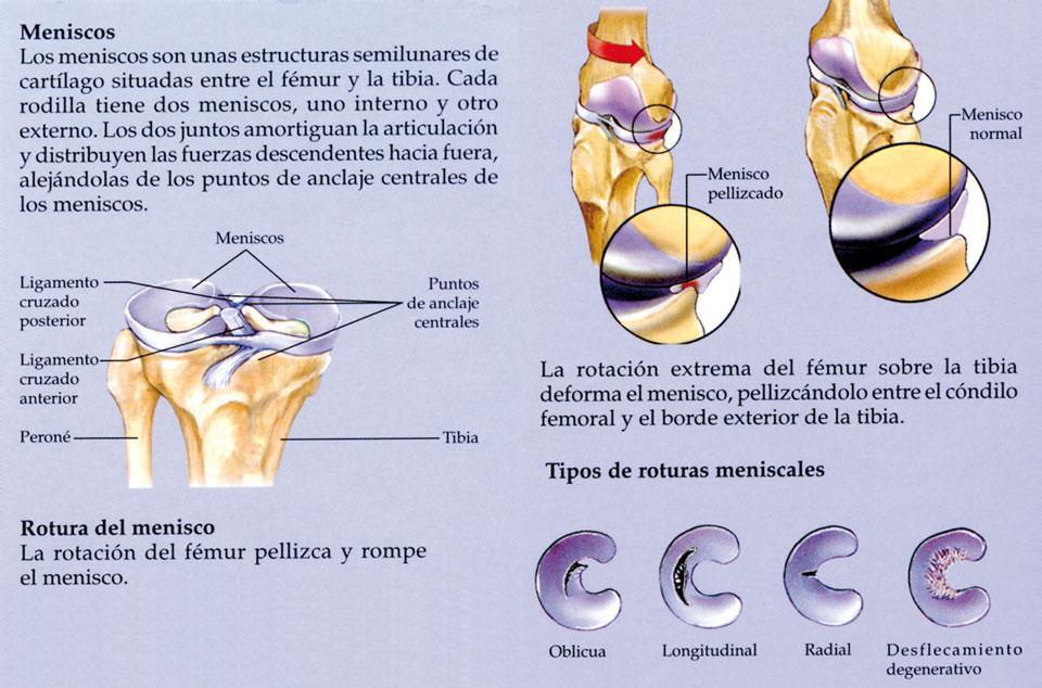 valor cirugia artroscopica rodilla