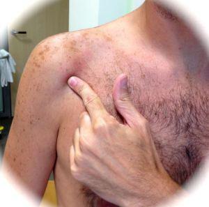 Paciente señalandonos su dolor, que se corresponde con una Bursitis de Hombro
