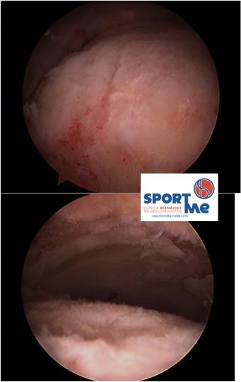 Condropatia cabeza femoral