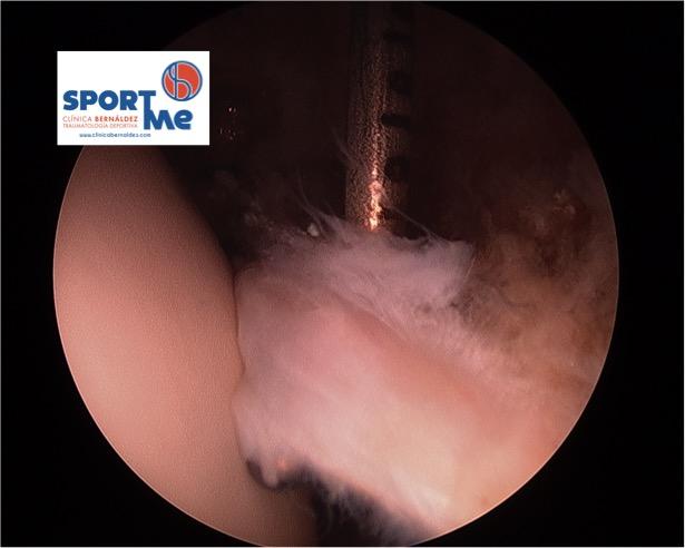 Rotura Labrum Cadera SPORTME