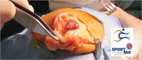 cirugia-bursitis3