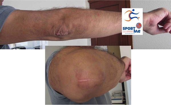 cirugia-bursitis6_opt