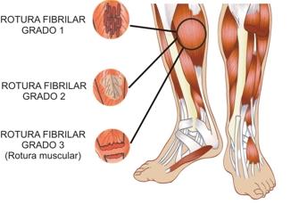 Gastrocnemio muscular de tratamiento desgarro