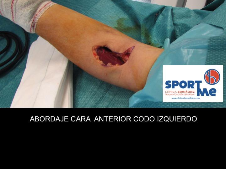 ABORDAJE QUIRURGICO ROTURA BICEPS CODO DR BERNALDEZ