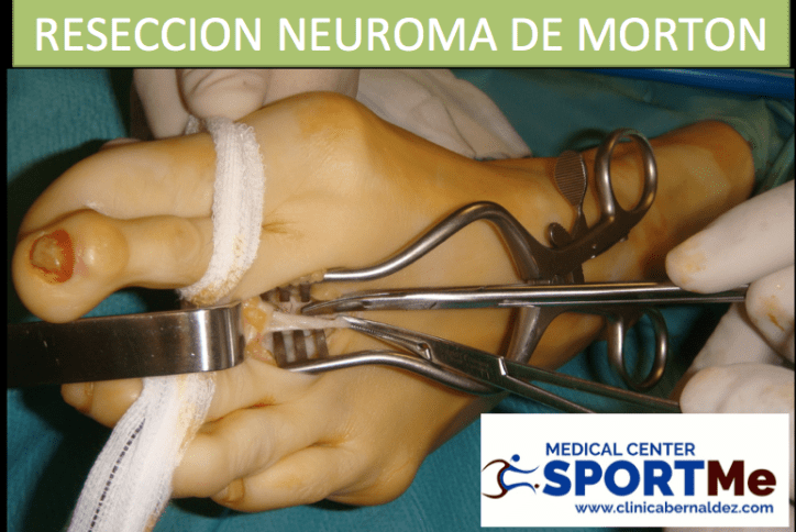 RESECCION NEUROMA DE MORTON SPORTME.