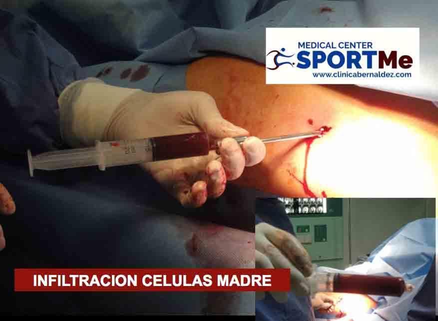 8 Celulas Madre SportMe