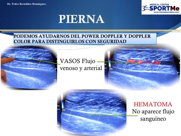 Diapositiva117