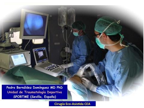 la-cirugia-eco-asistida-cea-02