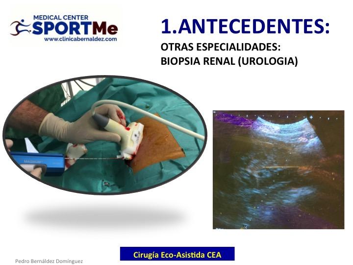 la-cirugia-eco-asistida-cea-07